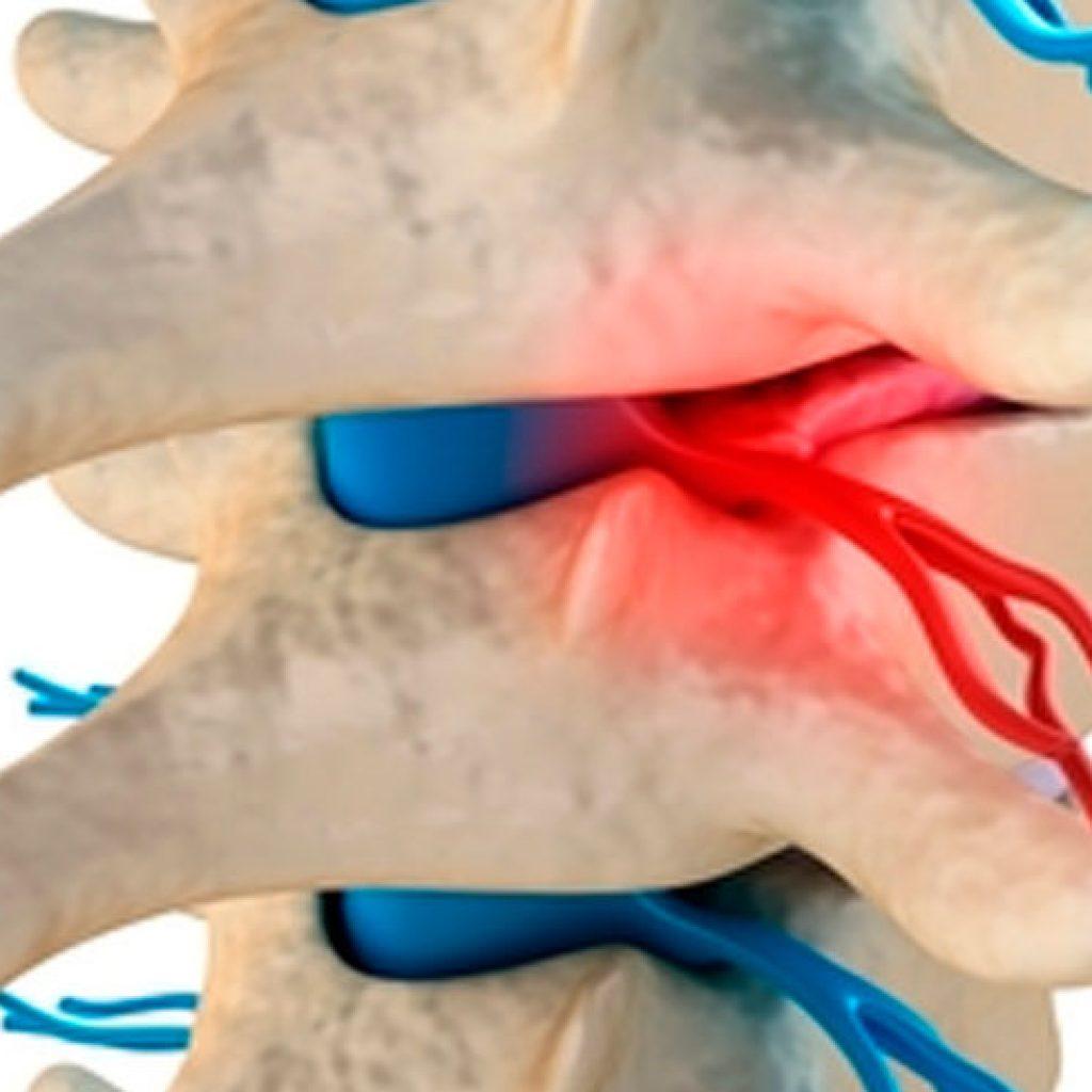 dolor-lumbar-3-3
